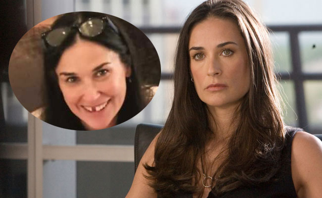 demi moore stress perde due denti