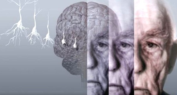Alzheimer, rallentare la malattia con il protocollo Train the Brain