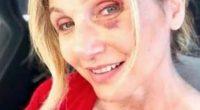 Lorella Cuccarini e quel volto pieno di lividi