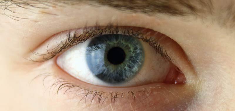 Lenti a contatto colorate portano infezioni e cecita