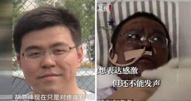 Medici di Wuhan cambiano colore della pelle dopo il coronavirus