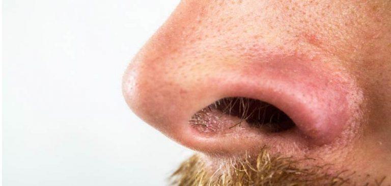 Epistassi, ecco perché il naso può sanguinare