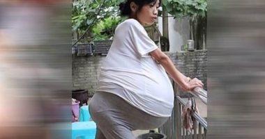 Incredibile rara malattia della donna dalla pancia enorme