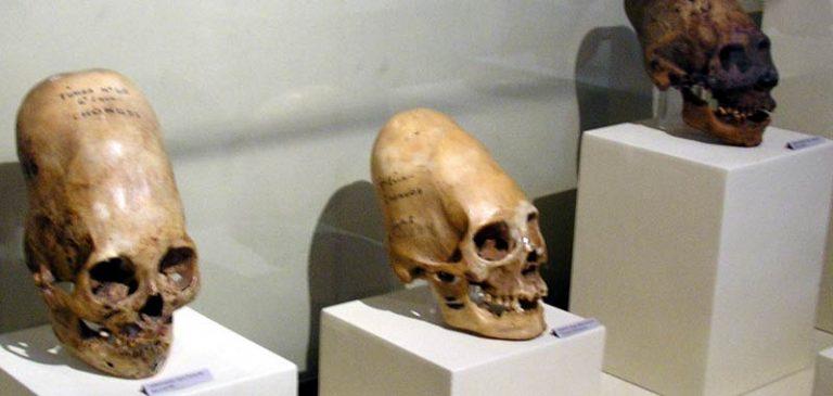 I teschi allungati ritrovati in Perù, non sono Homo Sapiens