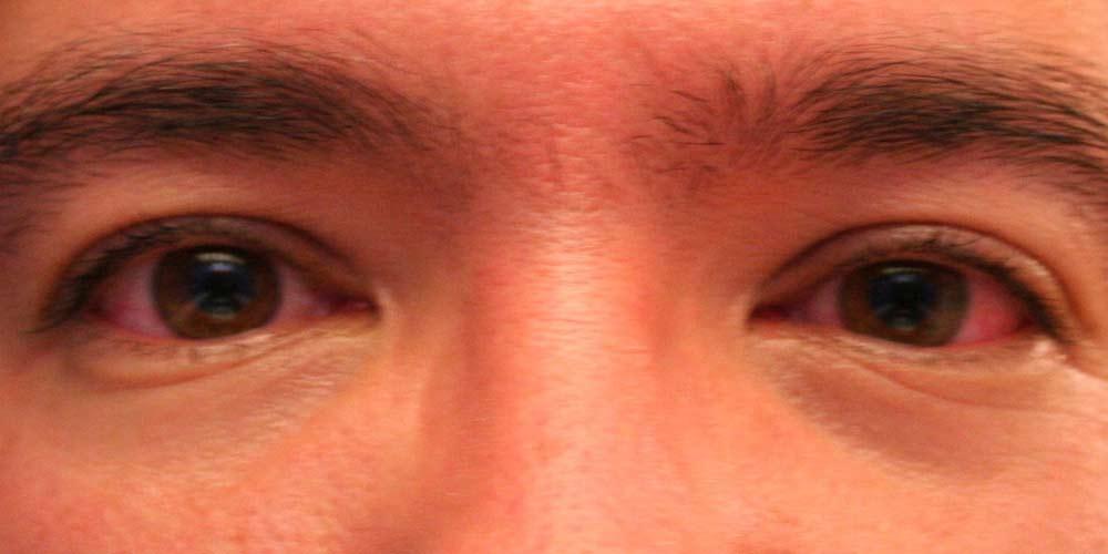 Covid-19 Cosa succede ai nostri occhi