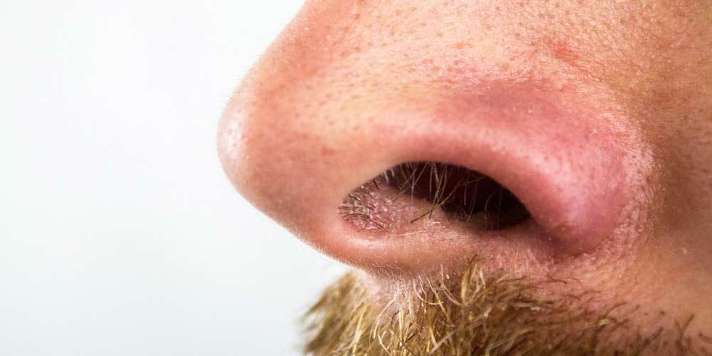 Perdita olfatto piu presente nei casi meno gravi di coronavirus