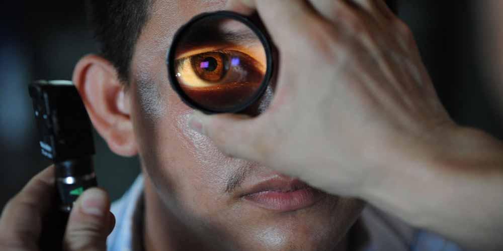 Glaucoma Alta pressione oculare puo portare alla cecita