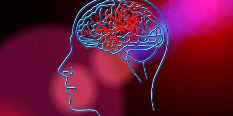 Ictus: Un trauma cranico può aumentarne il rischio