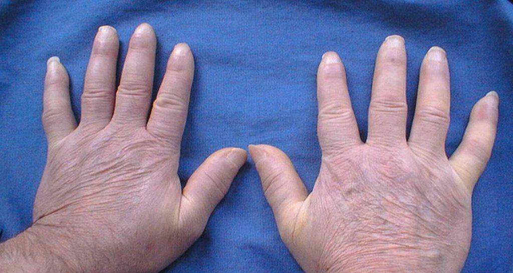 Colesterolo alto si puo vedere dalle pieghe della pelle
