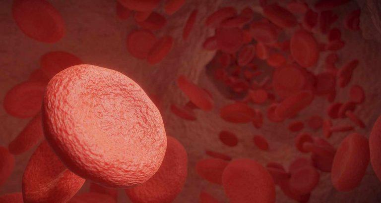 Ecco i sintomi che segnalano la malattia arteriosa
