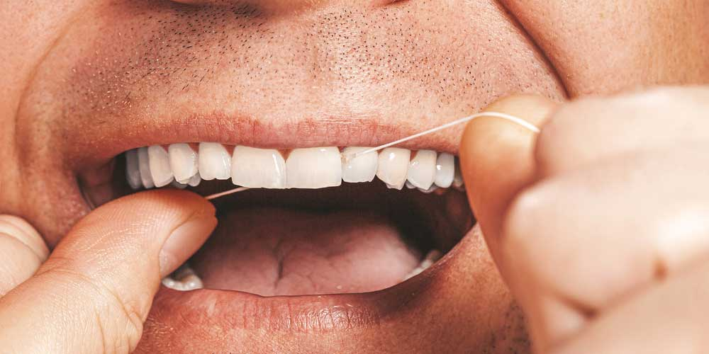 Placca dentale come fare per eliminarla